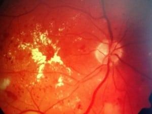 eye care diabetes